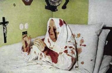 Les Stigmates - Thérèse Neumann (1898-1962). Image extraite du site Qui était Catherine Emmerich.
